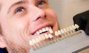Carillas dentales para corrección de imperfecciones